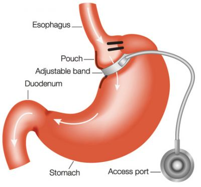 we are offering the Hypnotic Gastric Lap band 5 week program for the amazing price of $550