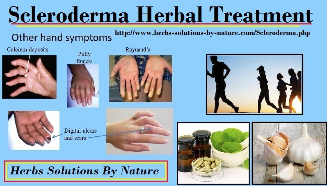 Scleroderma Herbal Treatment with Herbal Supplement