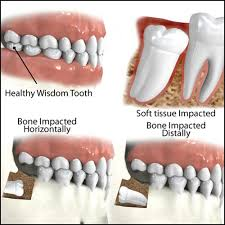 Wisdom Teeth Removal And Extraction – Healthy Smiles