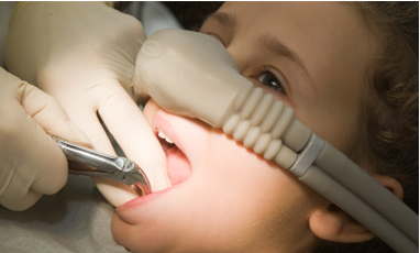 Sedation Dentistry Treatment in Blackburn, Melbourne by Healthy Smiles